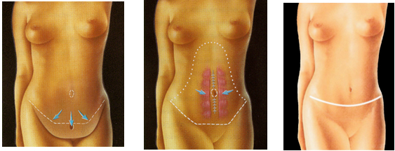 laderma-abdominoplastik