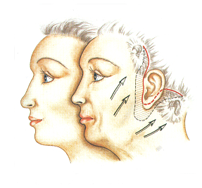 laderma-facelift